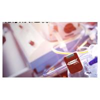 SONOTEC传感器在医疗技术上面的应用